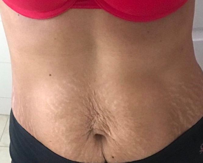 Mom of twins with her beauty marks !!